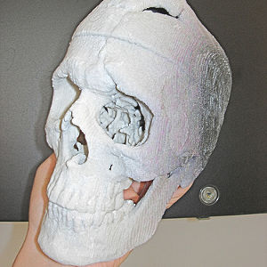 Impression 3D crâne